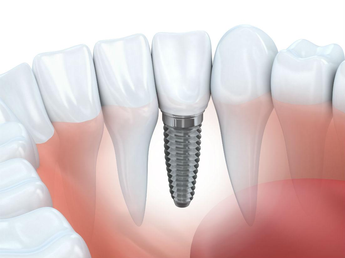 How to Avoid Common Dental Implant Problems