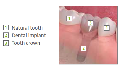 Dental Implants North Hollywood CA