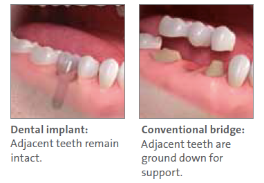 Dental Implant Procedure North Hollywood CA