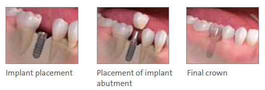Implant Dentistry North Hollywood CA