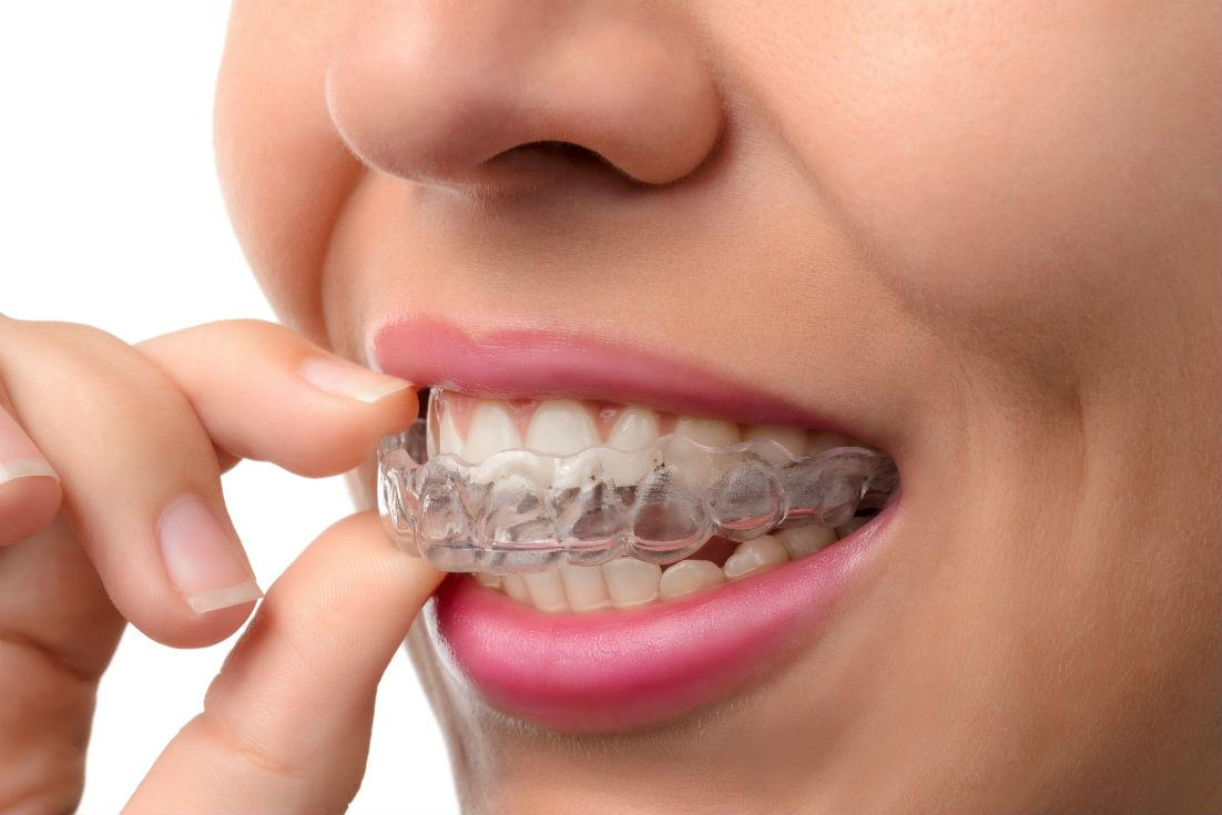 Invisalign North Hollywood CA