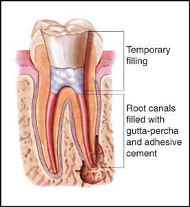 Endodontic Therapy North Hollywood, CA